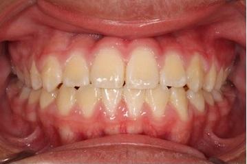braces-after-1