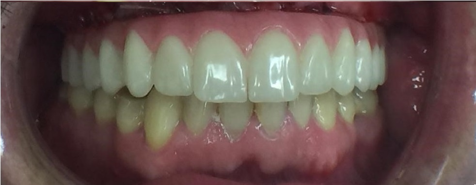 upper-dentures-after