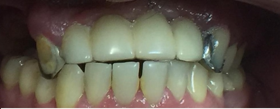 upper-dentures-before