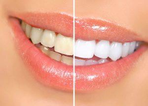 Teeth Whitening Smithtown NY